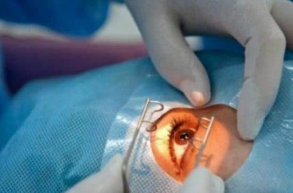 Операция удаление катаракты