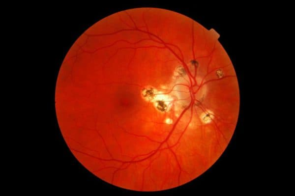 Картина глазного дна при амаврозе Лебера