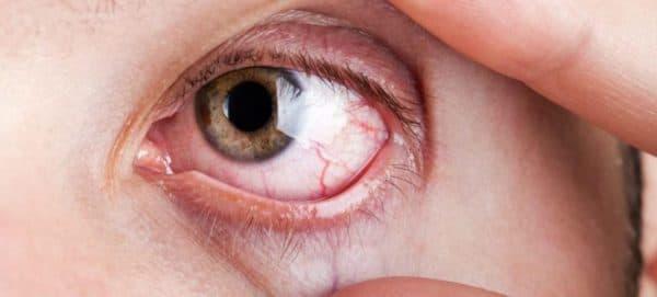 Цитомегаловирус на глазах