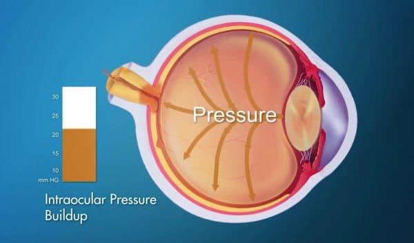 Повышенный уровень внутриглазного давления