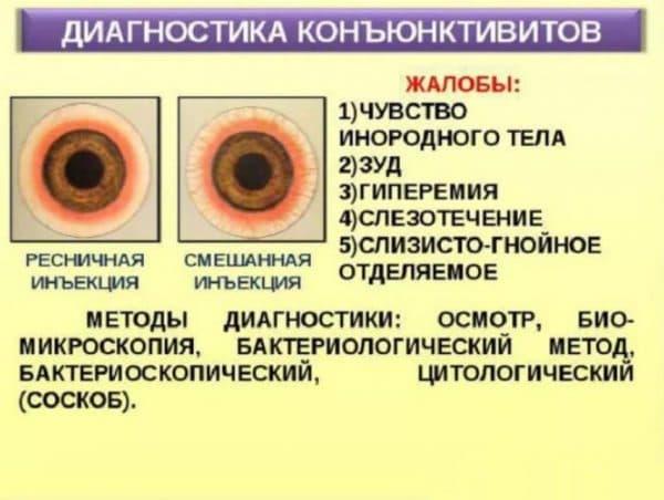 Диагностика бактериального конъюнктивита