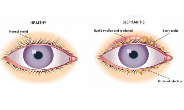 Блефарит - редкое побочное явление от применения мази Ацикловир