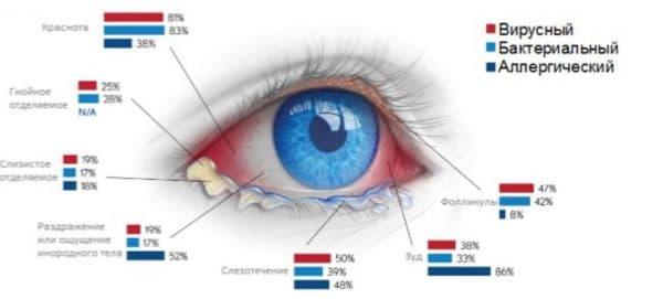 Процентное соотношение проявления симптомов при конъюнктивитах разной этиологии