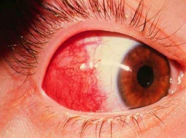 Воспаление глазных придатков