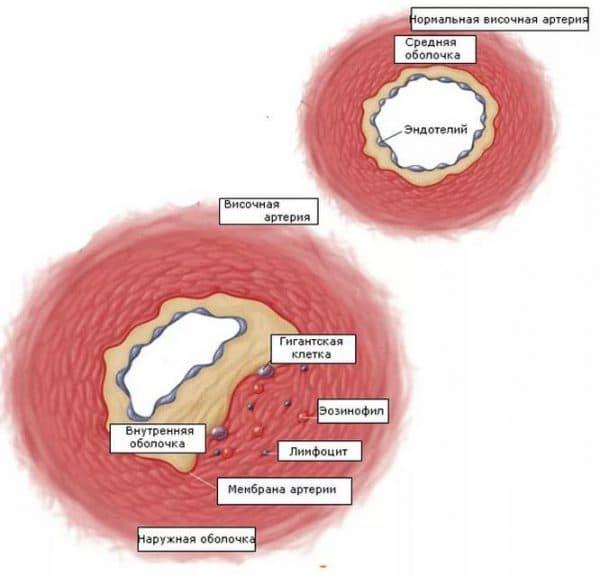 Сосуды, пораженные височным артериитом