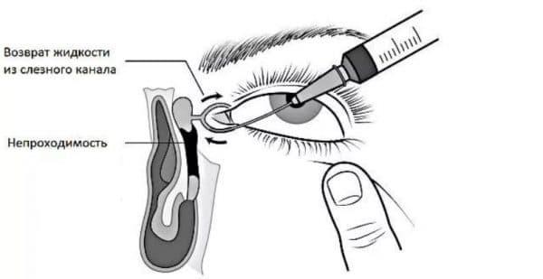 Проверка проходимости слёзного канала