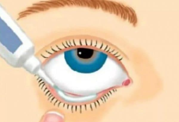 Как правильно закладывать мазь в глаза