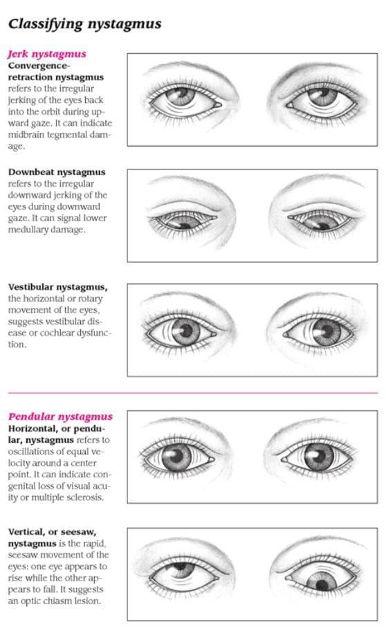 Диагностика вида нистагма