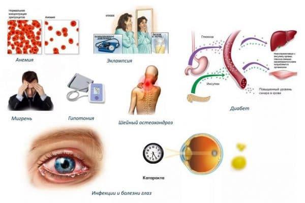 Заболевания, приводящие к появлению вспышек перед глазами