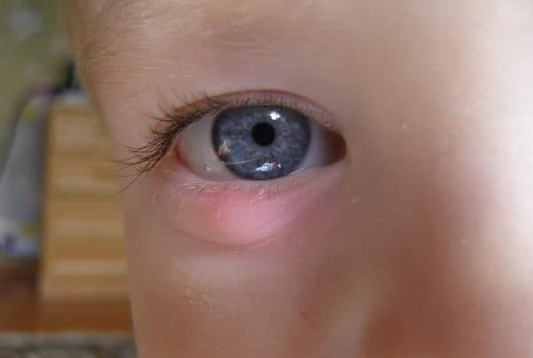 Внутренний ячмень на глазу у ребенка