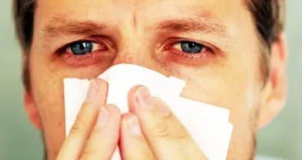 Признаки аллергии глаз