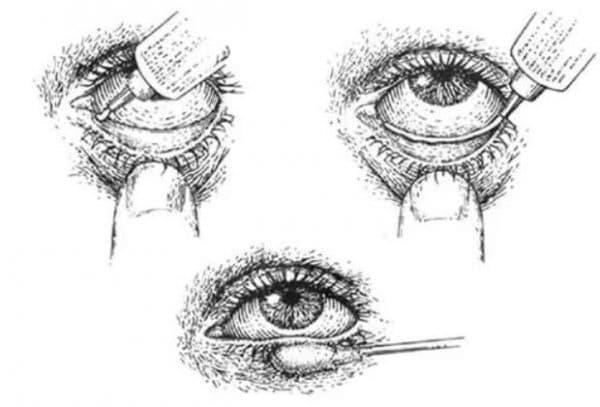 Как правильно применять глазные мази