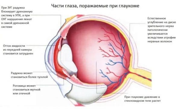 Анатомия глаза при глаукоме