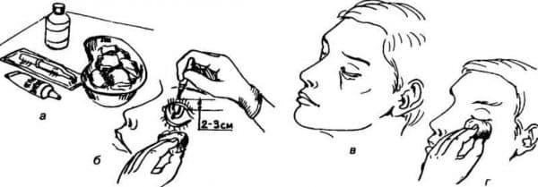 Как закапывать глазные капли