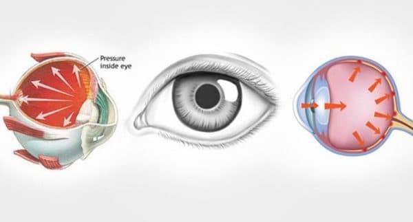 Схема повышенное внутриглазное давление