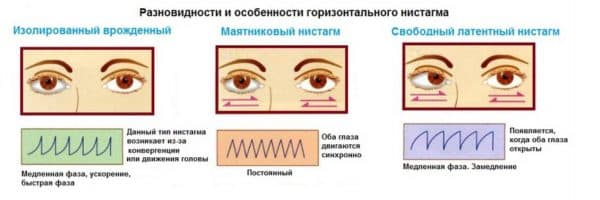 Виды горизонтального нистагма в зависимости от времени возникновения