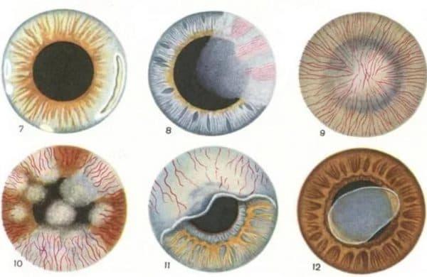 Виды виды вирусного кертита