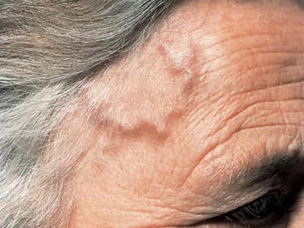 Симптом развития височного артериита