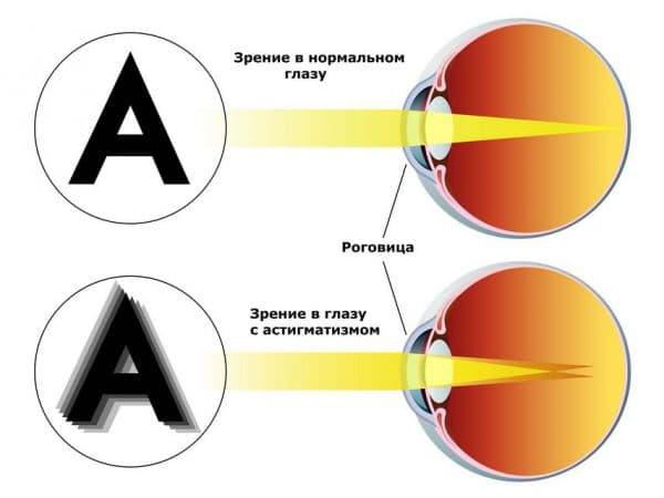 Существенное ухудшение зрения при гиперметропическом астигматизме