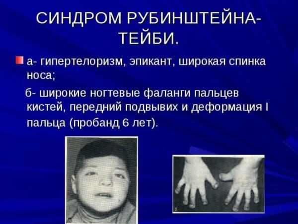 Синдром Рубинштейна-Тейби