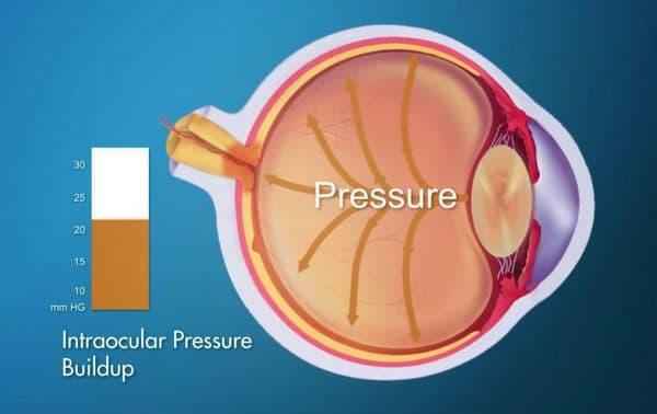 Запрещен прием Дексаметазона при повышенном внутриглазном давлении