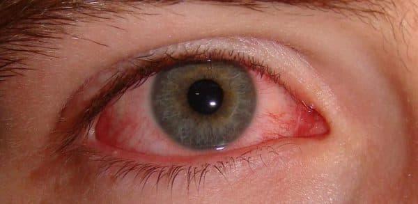 Красные глаза при конъюнктивите