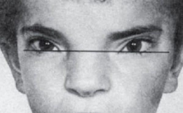 Линия замера расстояния между глазницами при гипертелоризме