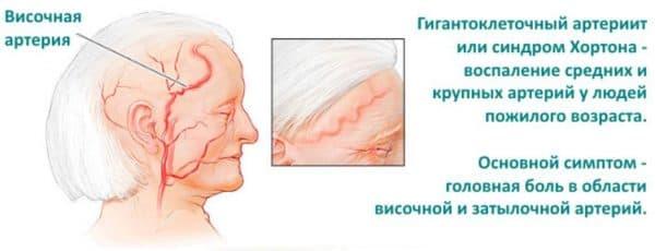 Первые признаки развития височного артериита