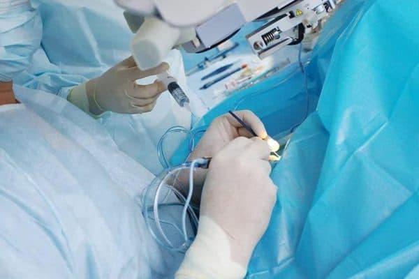 Лазерная дисцизия для лечения вторичной катаракты