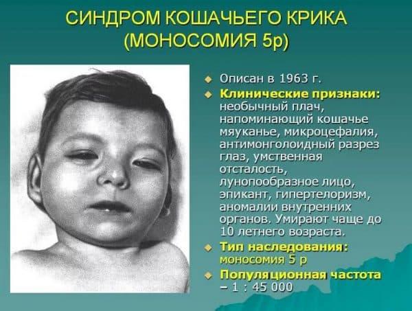 Моносомия