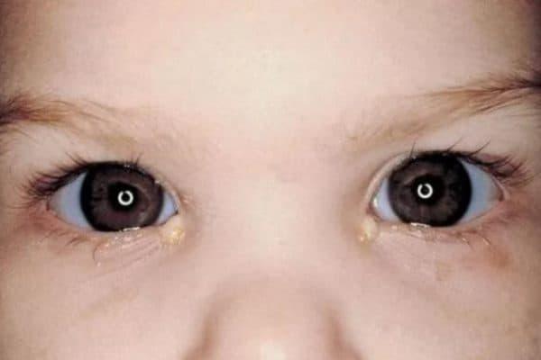 Выпадение ресниц у детей