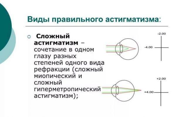 Особенности зрения при сложном астигматизме