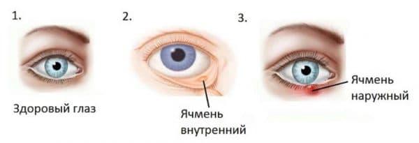 Как выглядит внутренний ячмень на глазу