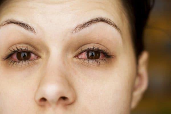 Гидрокортизоновая очна мазь інструкція
