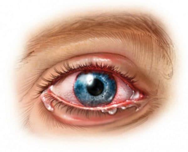 Симптомы уевита глаза