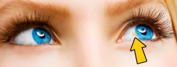 Желтое пятно на склере глаза
