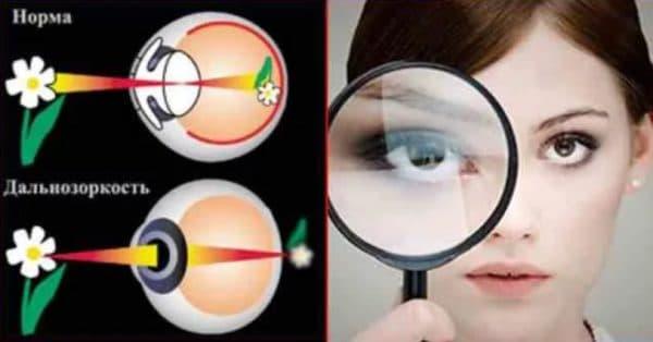 Как работаю очки при дальнозоркости