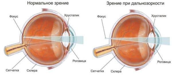 Анатомия глаза при дальнозоркости