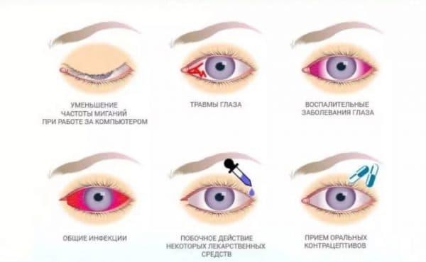 Симптомы дефицита природной слезы в глазах