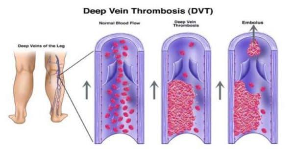 Тромбоз при лечении каплями Данцил