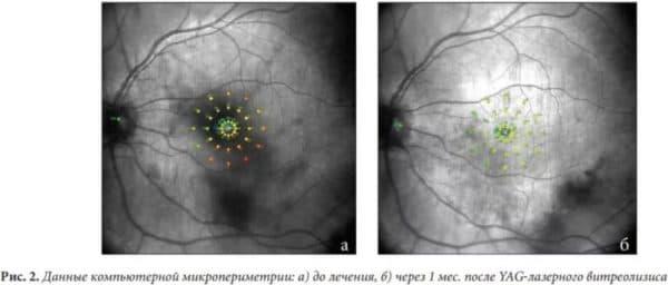 YAG-лазерный витреолизис до и после