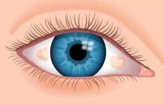 жёлтое пятно на белке глаза у ребёнка