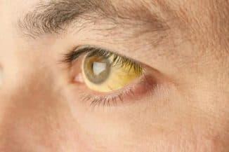 Желтые глаза у взрослого