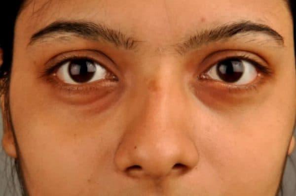 Желтые круги под глазами у женщин