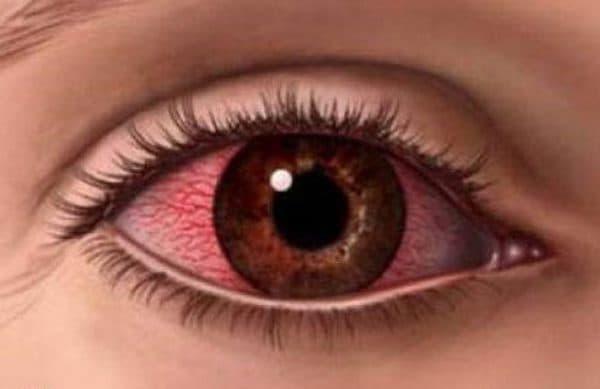 Красно-желтые склеры глаз