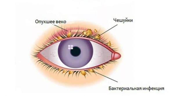 Лечение блефарита глазными каплями Катахром
