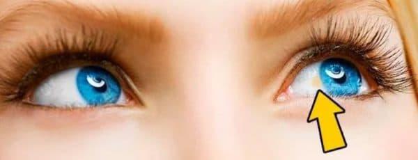 Жёлтое пятно на склере глаза
