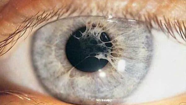 Синехия оболочки глаза