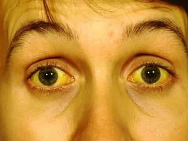 Желтые белки глаз и кожа