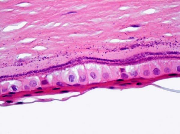 Кератопатия виды заболевания и лечения